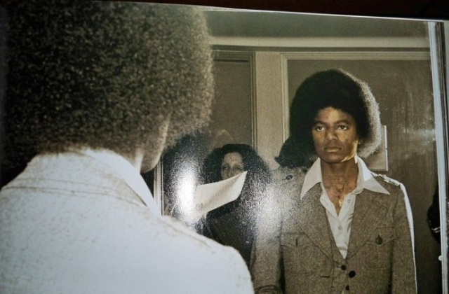 """Εδώ ο Μάικλ Τζάκσον σε νεαρή ηλικία αντικρύζει τον εαυτό του ως """"δίχρωμο"""", αποτέλεσμα της αρρώστιας λεύκη"""