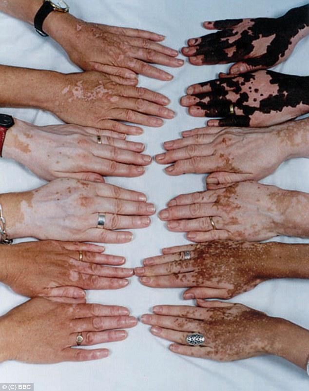 vitiligo illness